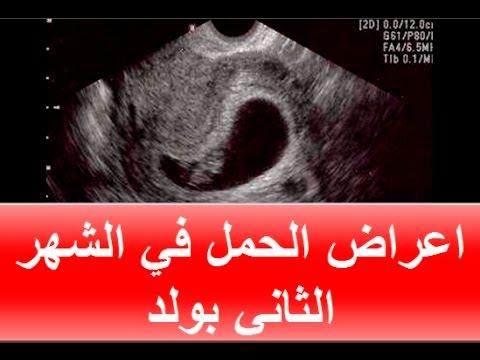 صورة اعراض الحمل بولد , الحمل بالولد و اعراضه