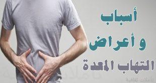 اعراض قرحة المعدة , اعراض كل ما يخص المعده