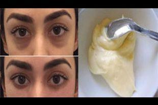 صورة الهالات السوداء تحت العين , علاج الهالات حول العين