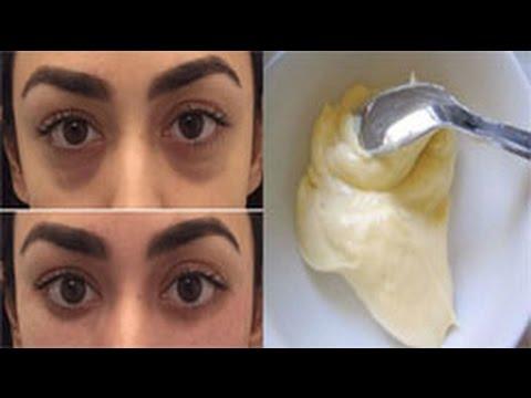 صور الهالات السوداء تحت العين , علاج الهالات حول العين