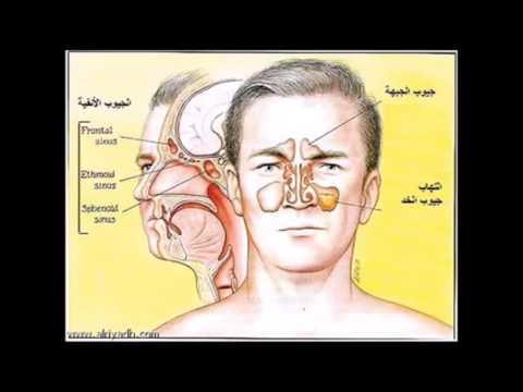 صور مرض باركنسون , علاج مرض باركنسون