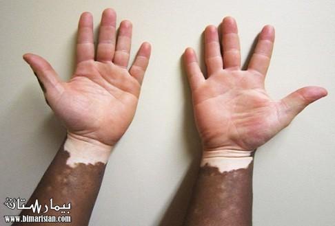 صورة علاج البهاق بالاعشاب , احدث علاج للبهاق