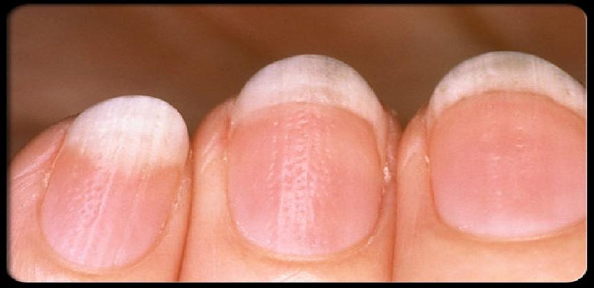 صورة امراض الاظافر , اهم الامراض التي قد تصيب الاظافر