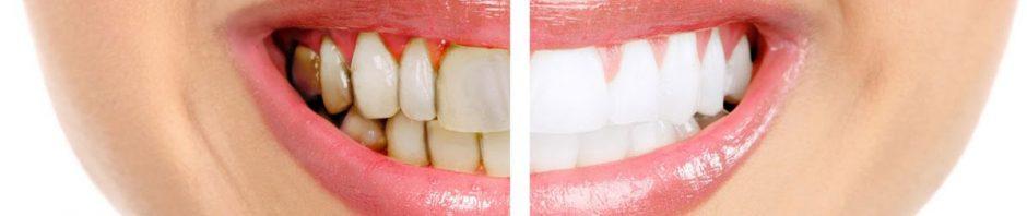 بالصور علاج تسوس الاسنان , افضل الطرق لمعالجة تسوس الاسنان 3727