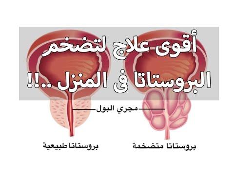 صورة علاج تضخم البروستاتا , مرض تضخم البروستاتا