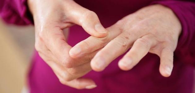 صوره علاج الروماتيزم , الطرق المتبعه في علاج الروماتيزم