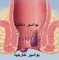 بالصور مرض البواسير , ما هو مرض البواسير 1258 2