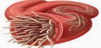 صوره علاج الديدان , كيفيه علاج الديدان