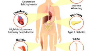 صوره اعراض نقص فيتامين د , فيتامين د واهميته واعراض نقصه