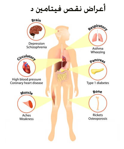 بالصور اعراض نقص فيتامين د , فيتامين د واهميته واعراض نقصه 2209