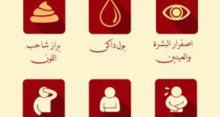 اعراض مرض الكبد , ما هي اعراض مرض الكبد