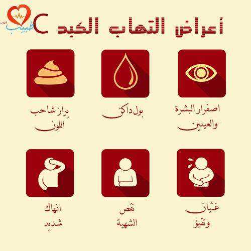 صوره اعراض مرض الكبد , ما هي اعراض مرض الكبد