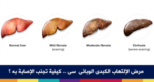 صوره مرض الكبد الوبائي , اهم المعلومات حول مرض الكبد الوبائي
