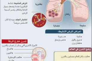 صوره علاج مرض السل , طرق علاج مرض السل