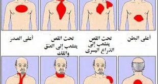 صورة علاج مرض القلب , مرض القلب واهم طرق العلاج