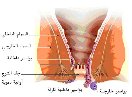 صور اعراض البواسير , علاج البواسير