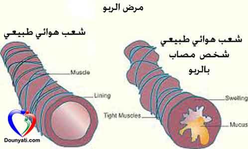 بالصور مرض الربو , ما هو مرض الربو 5394 2