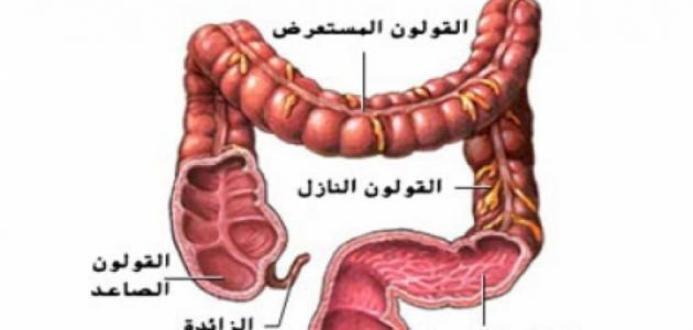 صورة مرض القولون , اسباب واعراض مرض القولون