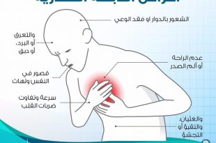بالصور اعراض الذبحة الصدرية , الذبحه الصدريه من اخطر الامراض لنتعرف علي اعراضها 1717 2 310x205