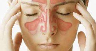 صورة اعراض حساسية الانف , حساسيه الانف من الامراض المزعجه لنتعرف عليها