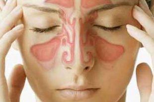 بالصور اعراض حساسية الانف , حساسيه الانف من الامراض المزعجه لنتعرف عليها 1734 2 310x205