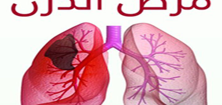 صور مرض الدرن , اقوى امراض الجهاز التنفسي