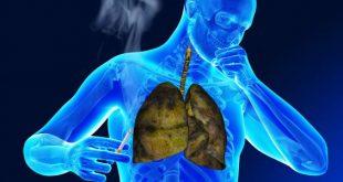 بالصور مرض الدرن , اقوى امراض الجهاز التنفسي 346 3 310x165