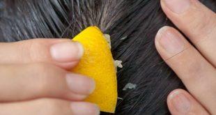 بالصور وصفات للشعر , اجمل المواد الطبيعية لشعر حرير 394 3 310x165