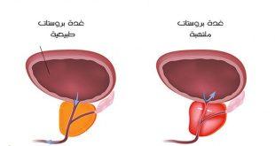 صوره اسباب تضخم البروستاتا , امراض الذكورة لدى الرجال