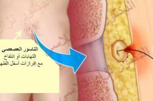 بالصور علاج الناسور , افضل ادوية لعلاج الناسور بدون جراحة 466 3 310x205