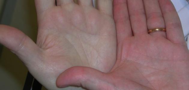 صور مرض فقر الدم , كيف تعرف انك مريض بالانيميا