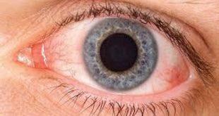 صوره علاج حساسية العين , تخلص مما يؤلم عينيك بافضل العلاجات المجرب