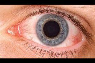 صورة علاج حساسية العين , تخلص مما يؤلم عينيك بافضل العلاجات المجرب