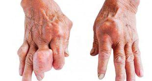 صورة مرض النقرس , ملف كامل ومعلومات عن النقرس