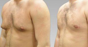 صورة عملية نحت الجسم , تجميل المناطق الغير المرغوبه في جسم الانسان