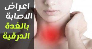 مرض الغدة الدرقية